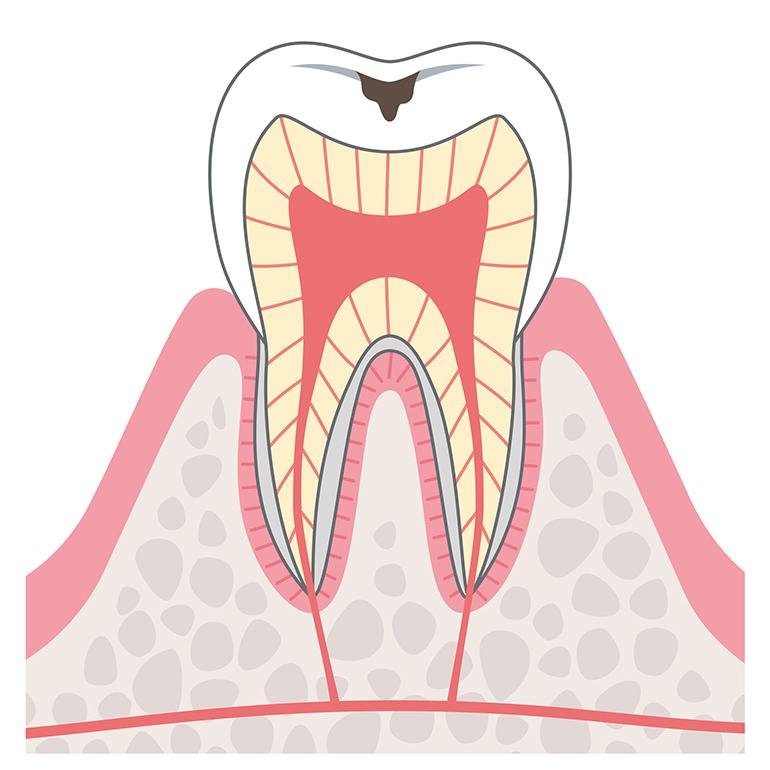 初期むし歯