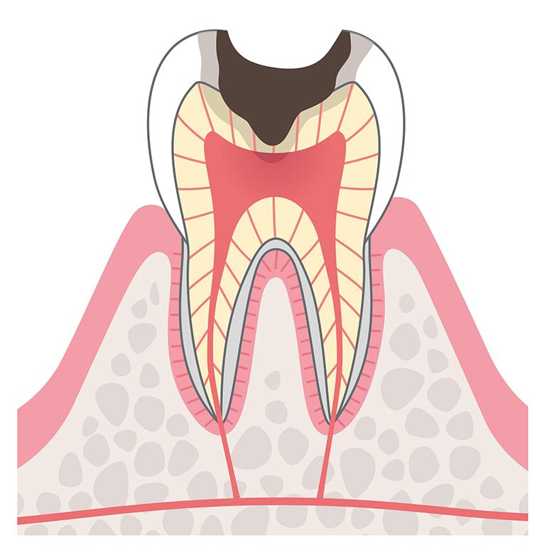 象牙質まで進行したむし歯