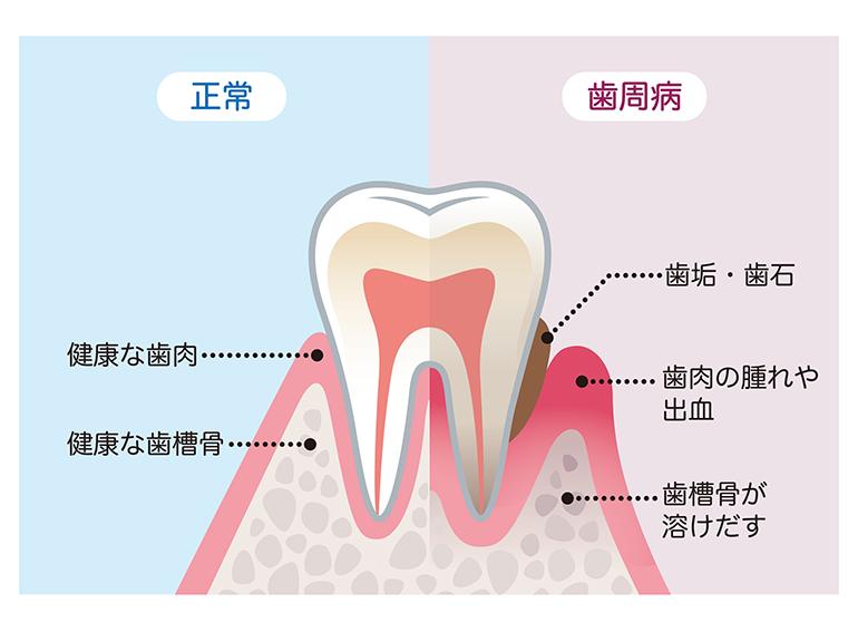 そもそも歯周病って何?